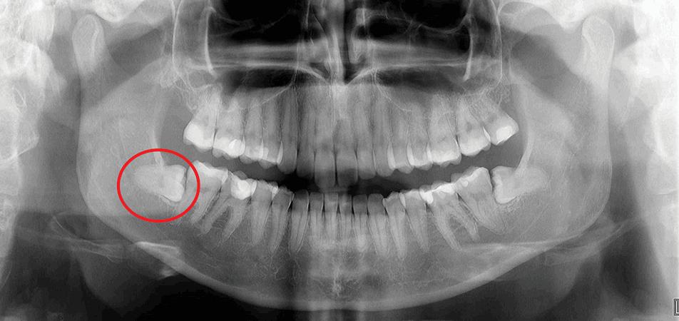oralchirurgie zahn rztliches zentrum timac. Black Bedroom Furniture Sets. Home Design Ideas