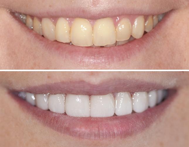 Rezultati izbjeljivanje zubi #1