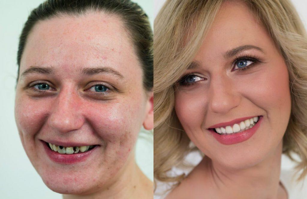 prije i poslije glavna Valentina 1 1024x666