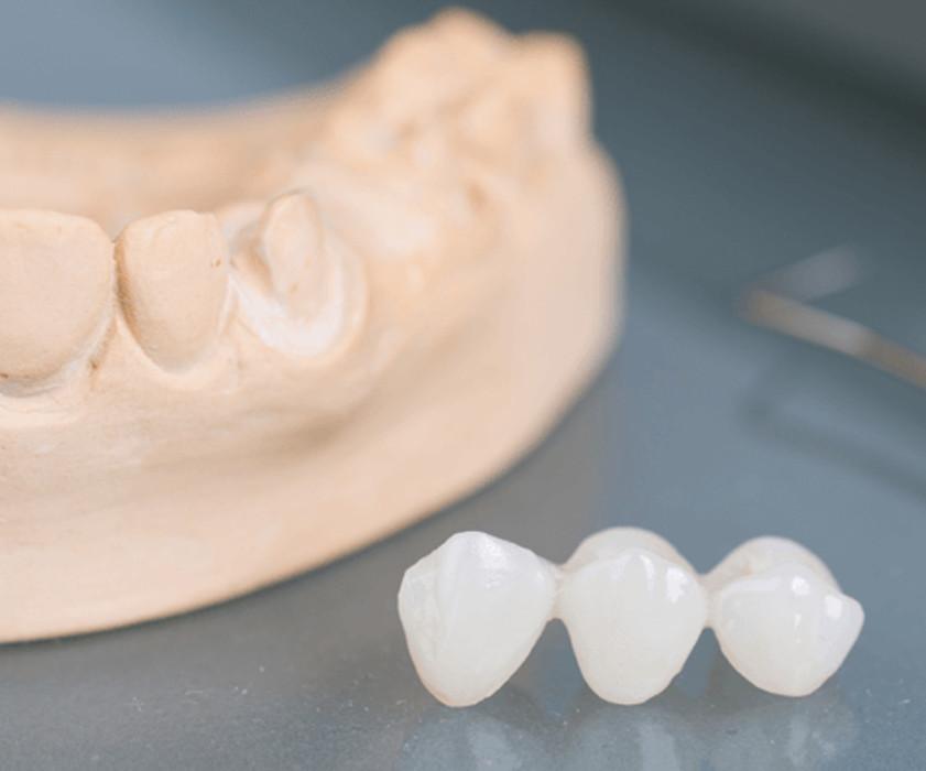 Ponti dentali