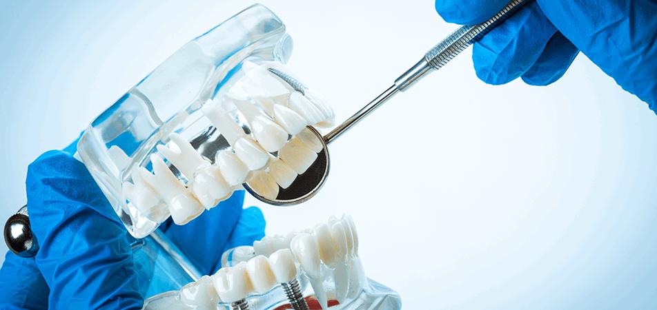 Zubne proteze – prednosti i nedostaci