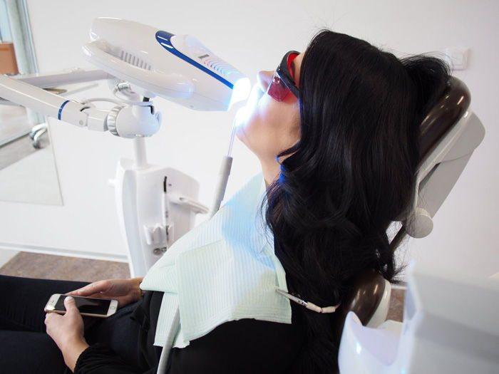 Izbjeljivanje zuba u Štimac poliklinici u Zagrebu