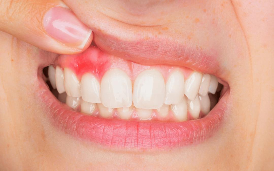 Kako riješiti sve češći problem parodontoze?