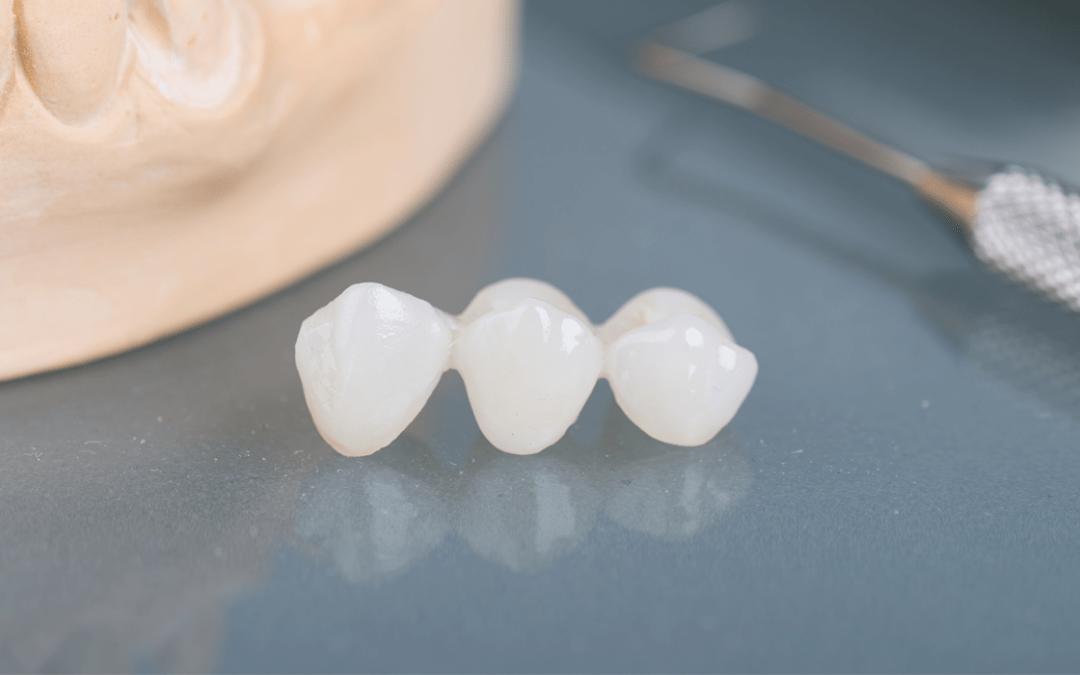 Koje su mogućnosti kod nedostatka, gubitka ili uništenja zubi?