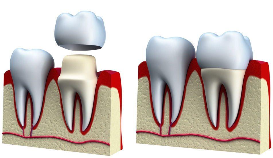 Zašto ugraditi zubne krunice