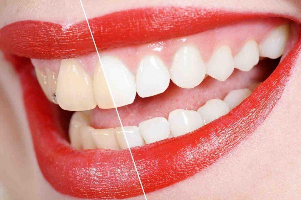 Kako dobiti bele zube