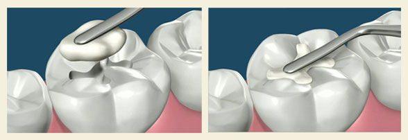 Što su zubne plombe (zubni ispuni)?