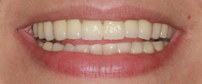 loši zubi na mreži