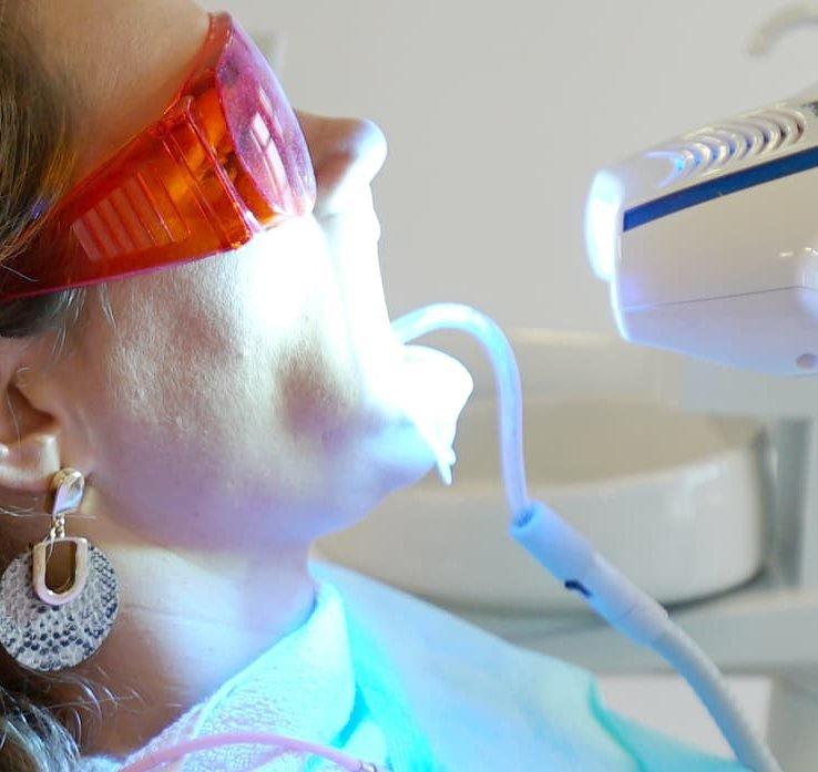 Izbjeljivanje zubi zoom lampom   Štimac centar dentalne medicine