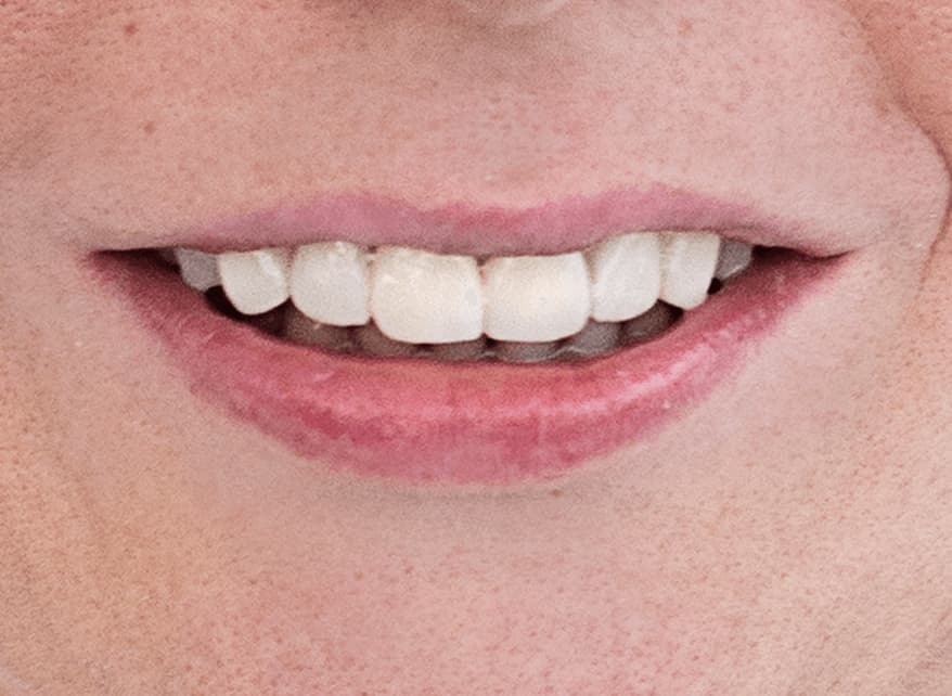 zubni implatanti