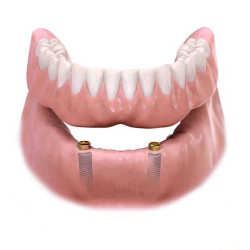 proteza na implantatima ilustracija