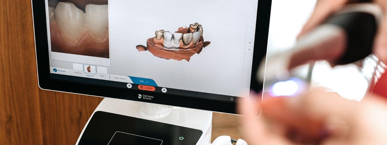 Primescan intraoralni skener